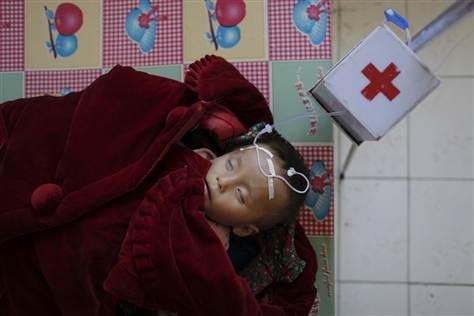 Imagen: Un niño de Corea del Norte sufre de desnutrición