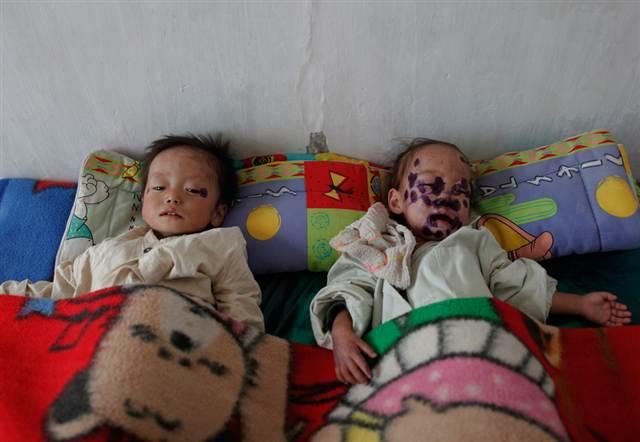 Imagen: los niños norcoreanos sufren malnutrición resto en un hospital de Haeju